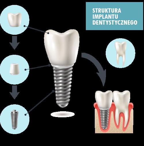 Struktura implantu