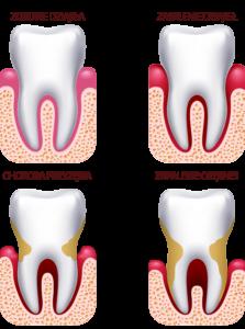 Periodontologia-przykłady-schorzeń