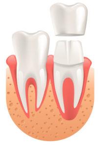 grafika korona zęba