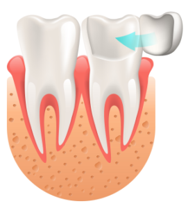 grafika licówka zęba