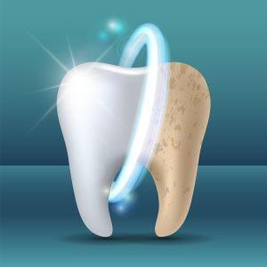 grafika wybielanie zęba